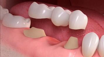 Dental Bridge Cost in Delhi | Porcelain Dental Bridge Delhi