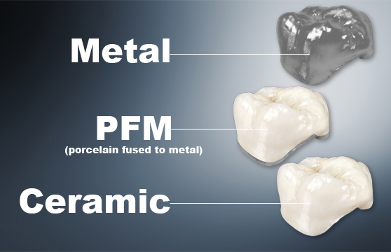 Dental Crowns, Teeth Capping, Teeth Zirconia Porcelain ...